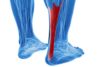 achilles tendonitis treatment in the Boynton Beach, FL 33437 area