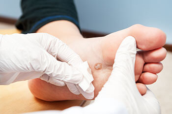 Plantar warts treatment in the Boynton Beach, FL 33437 area